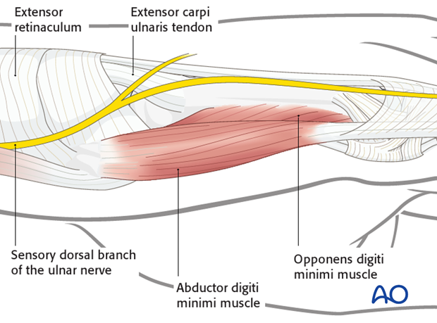 The insertion of the extensor carpi ulnaris tendon is onto the ulnar base of the fifth metacarpal. The sensory dorsal branch ...