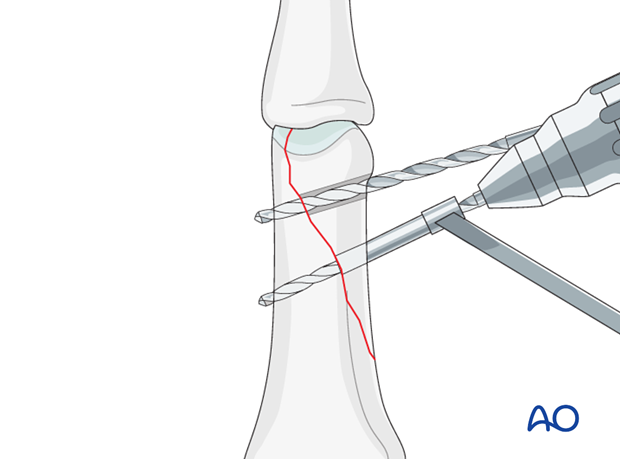 Oblique distal condylar fracture of the proximal phalanx – Lag screw fixation