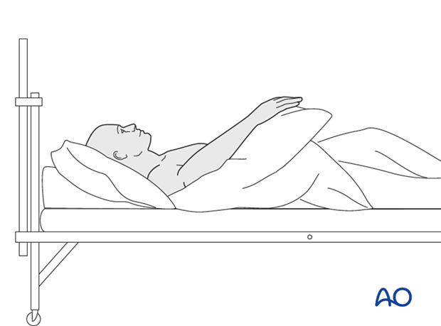 While the patient is in bed, use pillows to keep the hand elevated above the level of the heart to reduce swelling.