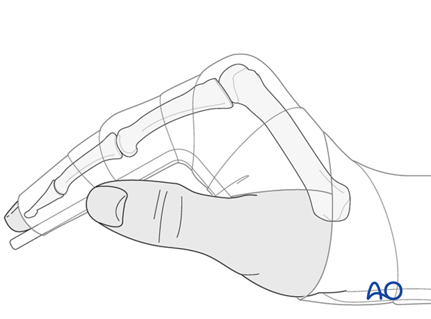 "A removable splint should be applied at the end of the operation, with the hand in an intrinsic plus position (""safe"" or ""Edinburgh"" position)."