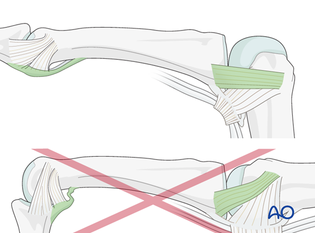 The reason of immobilization of the MCP joint in flexion is to maintain its collateral ligament at maximal length, avoiding scar contraction. PIP joint extension in this position also maintains length of the volar ...
