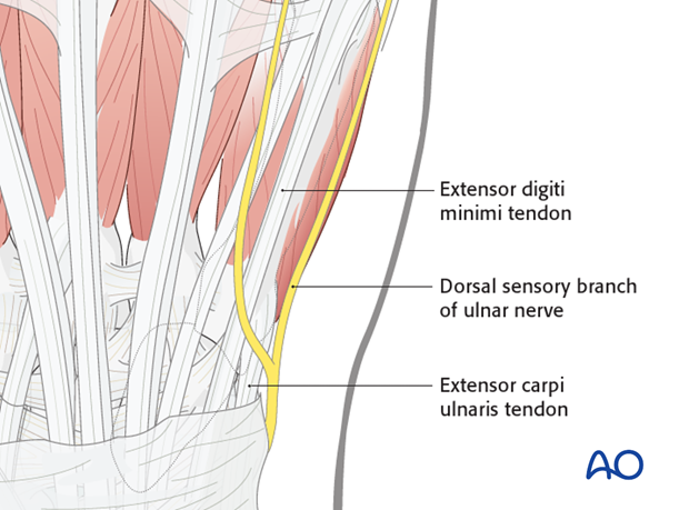 The extensor tendons of the little finger converge slightly towards the center of the wrist joint. The dorsal sensory branch ..