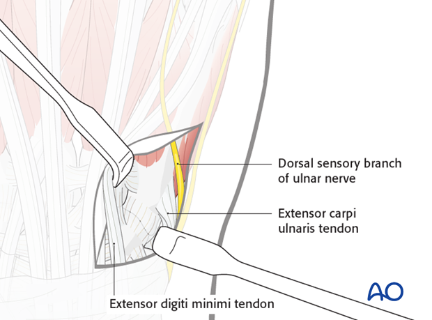 The extensor tendons are retracted radially together with the surrounding loose connective tissue. The dorsal sensory branch ..