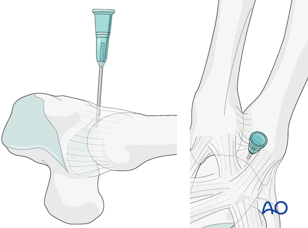 If a capsulotomy is not needed, mark the position of the joint with a hypodermic needle or a small K-wire in order to ...