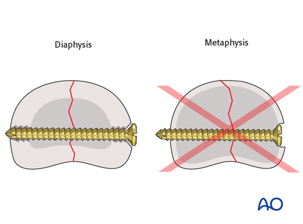 Do not countersink the screws in the metaphysis as its cortex is very thin. If countersinking is attempted, all purchase ...