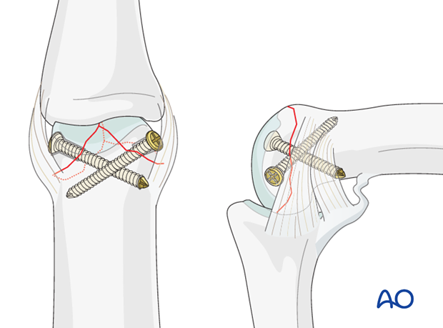 T-shapred fracture of the proximal phalanx PIP joint – Lag screw fixation