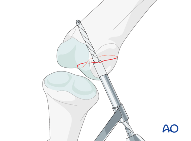 Unicondylar fracture dislocatino of proximal phalanx PIP joint – Lag screw fixation