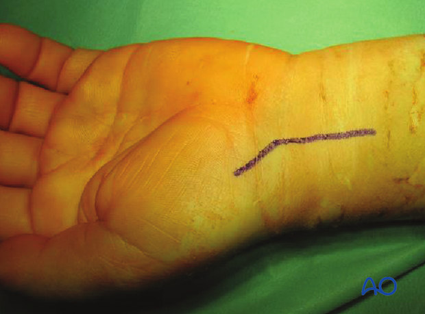 Palmar approach to the scaphoid - Incision