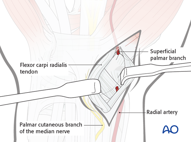 Palmar approach to the scaphoid – Opening of CFR sheath