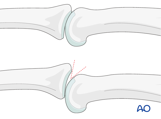 AP and lateral x-rays are necessary for diagnosis. Be careful to avoid interposition of other fingers in the x-rays.