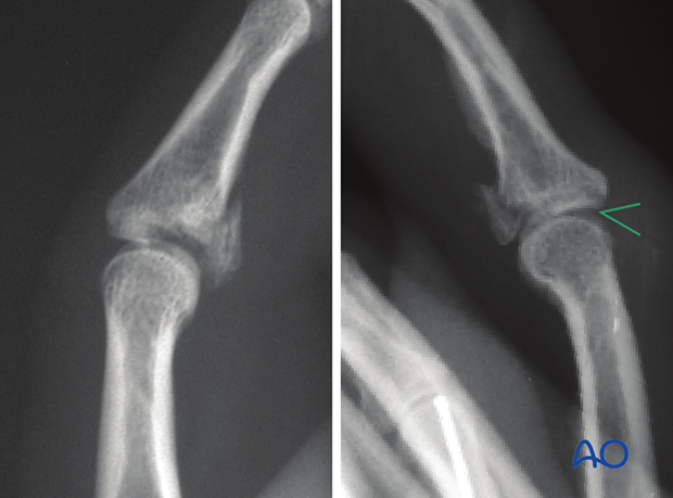 AP and true lateral x-rays are necessary for diagnosis. Be careful to avoid overlap of other fingers in the x-rays.