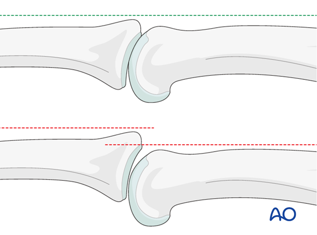 In the lateral view, the proximal and middle phalanges should be collinear. Any axial malalignment is a clear indication of ...