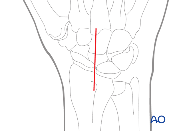 Combined approach to perilunate fractures and dislocations - Incision