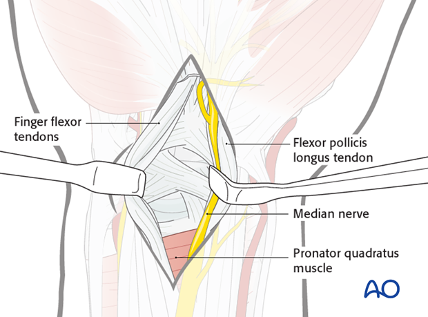 Approach to the radial palmar capsule