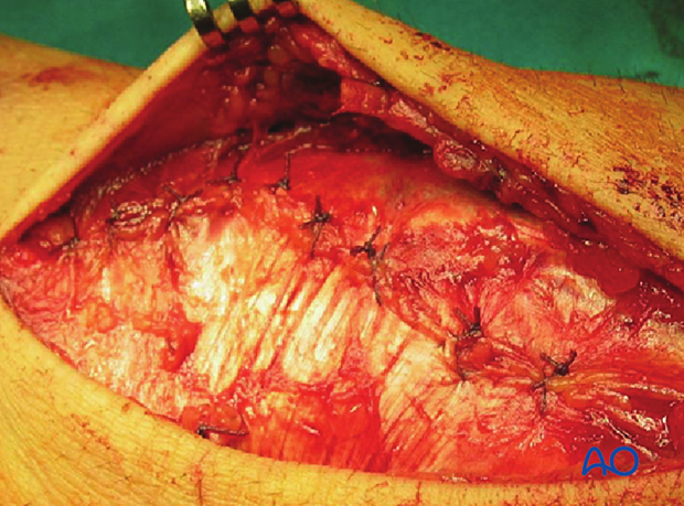 Combined approach to perilunate fractures and dislocations – Wound closure