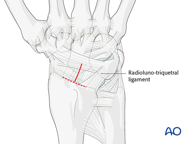 Combined approach to perilunate fractures and dislocations - Exposure