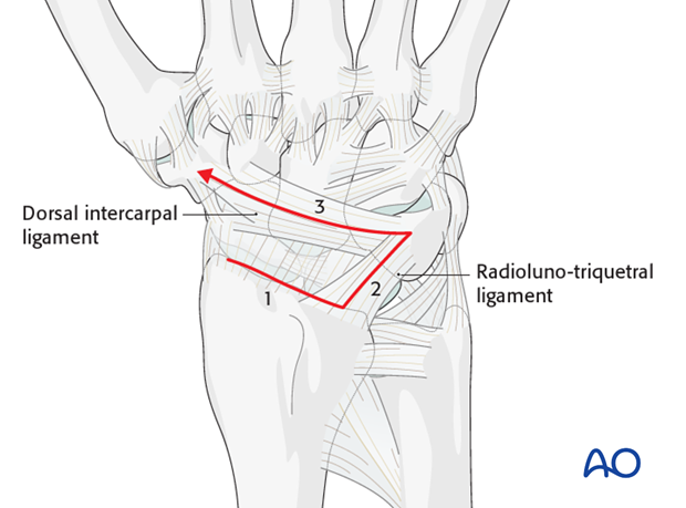 Combined approach to perilunate fractures and dislocations – Radially based capsule incision