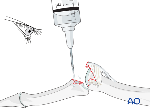 Use a syringe to clean out blood clots with a jet of Ringer lactate fluid.