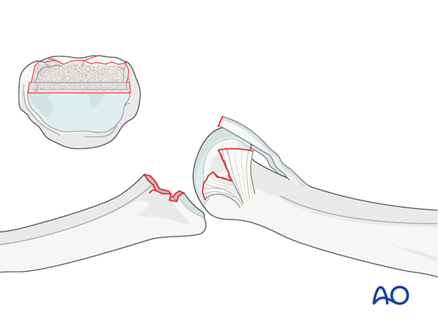Using a fine rongeur, shape a transverse groove in the subchondral bone at the base of the middle phalanx ...