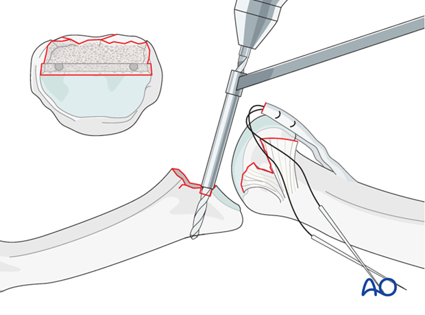 Use fine multifilament sutures with double-mounted straight needles to insert a criss-cross stitch (Bunnell) in each side ...