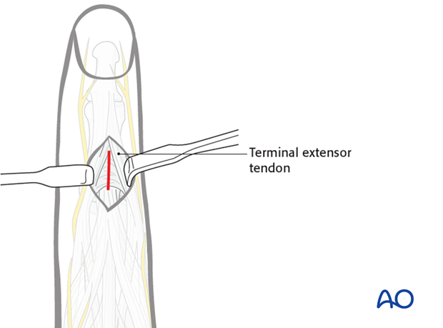 Make a dorsal incision of about 1 cm distal to the insertion of the central extensor slip, incising the triangular ligament.