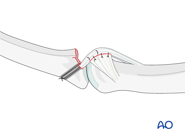 If there is lateral instability, resuturing of the accessory collateral ligament to the volar plate is recommended.