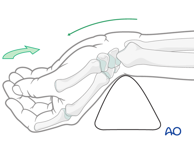 Anatomical structures for minimally invasive access to the scaphoid