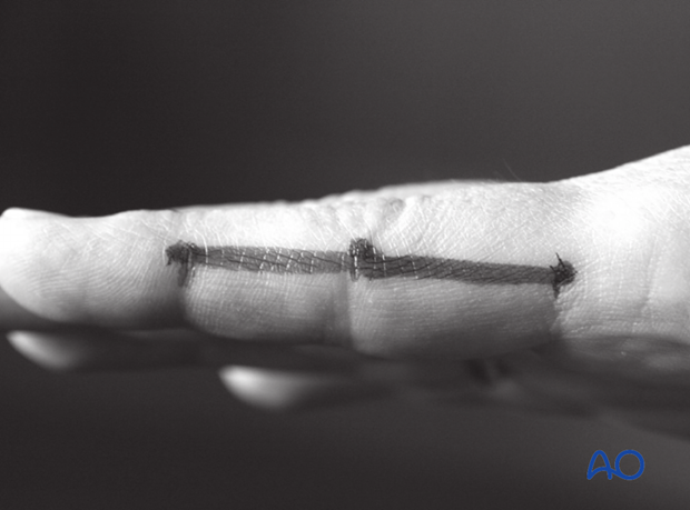 Extend the finger and connect the dots in a line. The resulting line is safe for a midaxial skin incision.