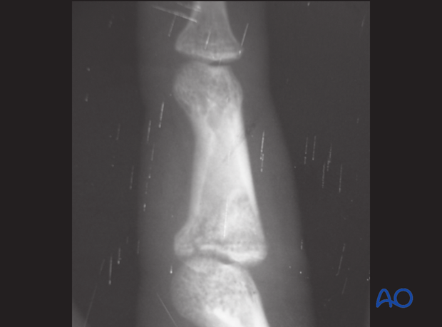Extensive comminution with impaction of the subchondral metaphysis is a typical indication for bone graft reconstruction.