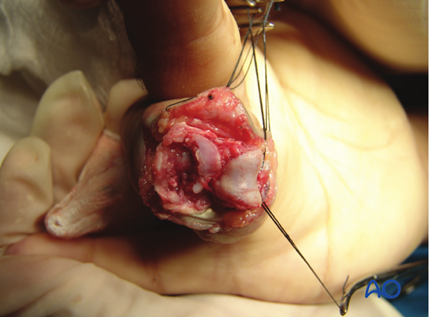 The image shows a fracture with clearly more than 60% of the articular segment damaged.