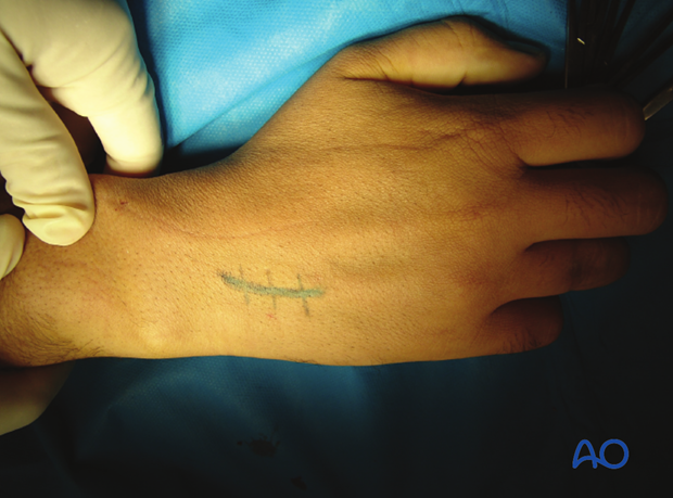 A longitudinal incision of approximately 2 cm is made at the junction of the bases of the 4th and 5th metacarpal, extending ...