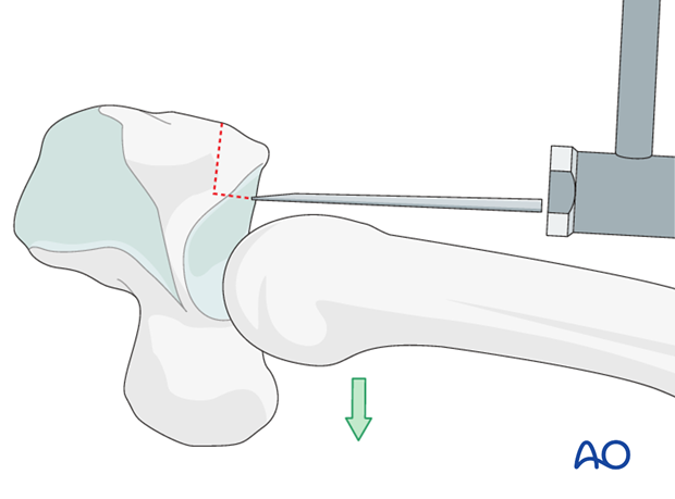 In order to free the graft fragment from the hamate, dislocate the metacarpals palmarly, and use a chisel as a lever to ...