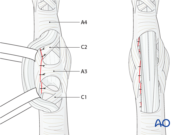 The flap of the C1, A3, and C2 pulleys is passed beneath the flexor tendons, and sutured to the opposite side.