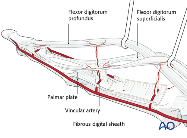 The vincular arteries, essential for vascularization of the flexor tendon, are at risk in palmar avulsion injuries.