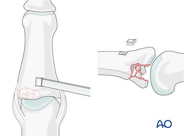 Use a small osteotome to cut a rectangular window into the cortical bone. Remove the osteotomized bone and carefully ...