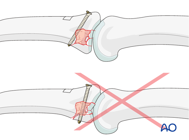 Be careful to insert the screw in such a way that it exits through uninjured cortical bone in the far cortex.