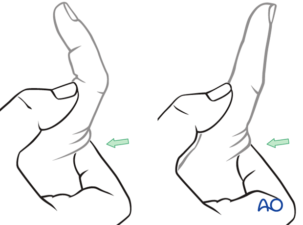 In order to recognize detachment of the central slip, ask the patient to extend the PIP joint with the MP joint in ...