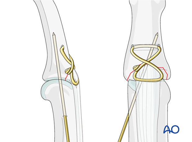 If there is any doubt about the stability of the fixation, insert a K-wire obliquely crossing the PIP joint.