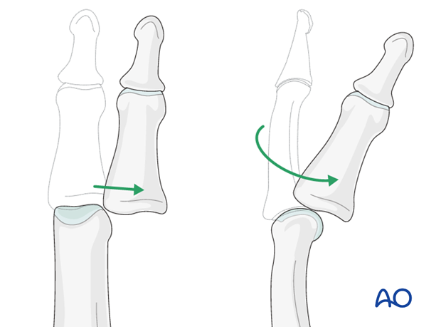 Dislocations of the PIP joint are classified according to the direction of displacement of the middle phalanx ...
