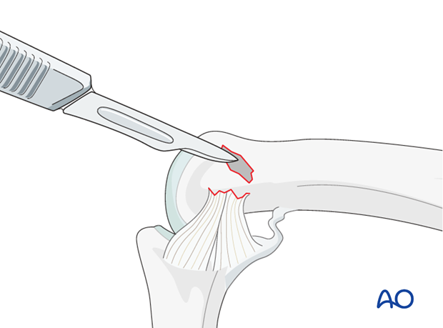 Using a scalpel, a tiny curette, or a small burr, clean the attachment site of the collateral ligament of any remaining ...