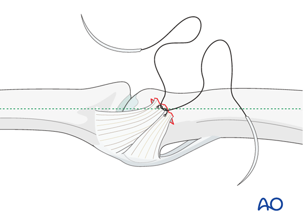 Approximate the collateral ligament to the reattachment site by extending the finger.