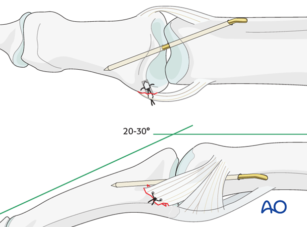 Insert a K-wire across the PIP joint obliquely, with the finger in 20-30 degrees of flexion.