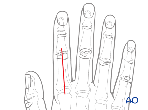 Dorsal approach to the phalangeal metaphysis (after Pratt)