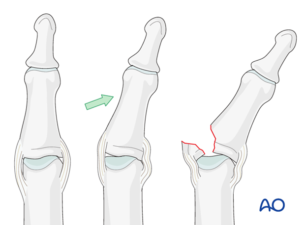 Avulsion fractures are the result of side-to-side (coronal) forces acting on the finger, putting the collateral ligament ...