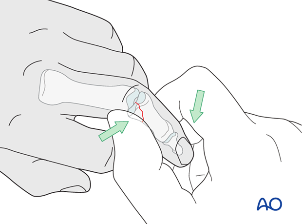 Reduction is achieved by pulling the finger laterally, in the direction opposite to the forces that created the fracture, ...