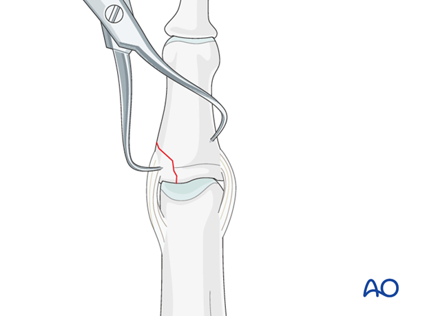 In displaced fractures, open reduction is often necessary after preparation of a gliding hole (see later).