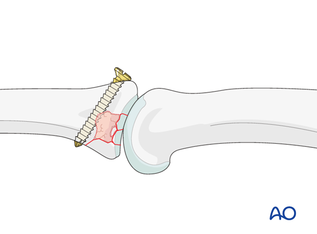 In case of a small cavity, one option is to insert a position screw from dorsal to palmar, just at the distal edge of the ...