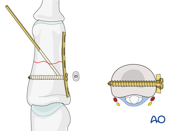 Insert the first screw in a neutral position. Ensure that it engages the far cortex. Failure accurately to measure the ...