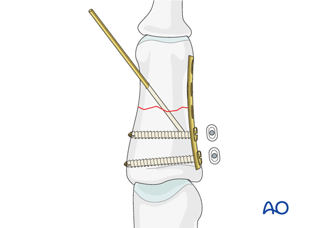 Insert a second screw in a neutral position on the same side of the fracture after the same fashion as above.