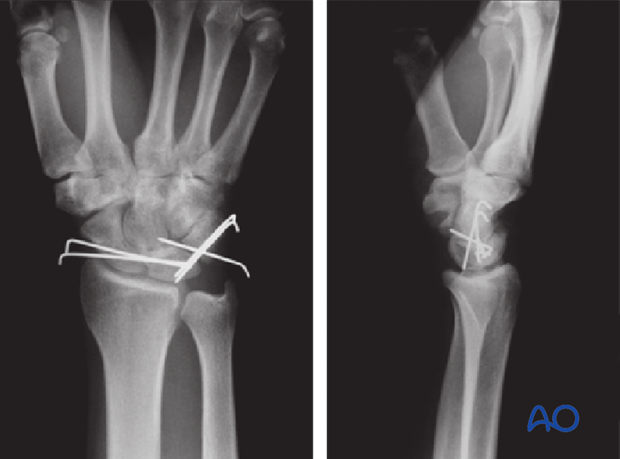 Carpus – Complete dislocation of the luante – ORIF – Open reduction internal fixation
